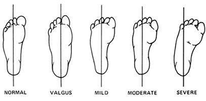 hiperlaxitate articulara articulatia radioulnar proximal